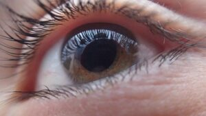 Low degree of mixed astigmatism