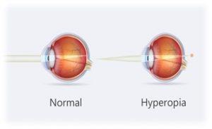 Symptoms and sings of Hyperopia