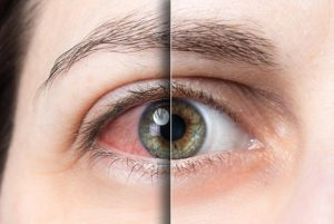 DO YOU FEEL DRYNESS IN YOUR EYES AFTER WORK?