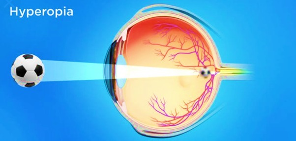 Optics of Hyperopia