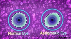 Etiology of Astigmatism