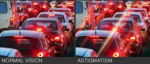 Signs & Symptoms of Astigmatism
