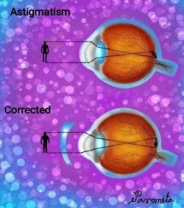 TREATMENT OF ASTIGMATISM