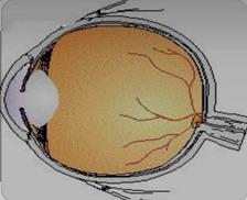 Aphakic Eye