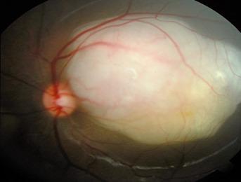 Cell of Retinoblastoma