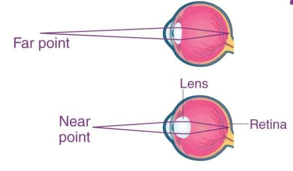 Effective Mechanism And Binocular Accommodation