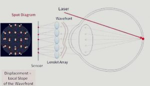 OPTICAL ABERRATIONS OF THE NORMAL EYE